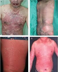 Atezolizumab: Rủi ro đã xác định về các phản ứng có hại trên da nghiêm trọng