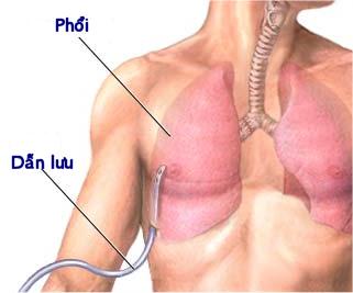 CMDh phê duyệt chỉ định điều trị tăng huyết áp động mạch phổi của Granpidam (sildenafil)