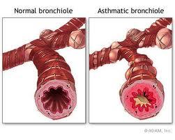FDA (Mỹ): Nguy cơ tăng nhẹ ADR trên tim mạch và mạch máu não của thuốc Xolair (omalizumab)