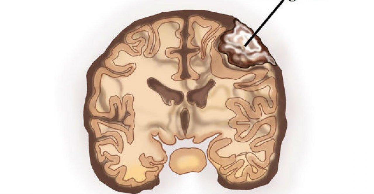 EMA: Ngày 14/2/2020, Cơ quan quản lý Dược phẩm Châu Âu thông báo hạn chế sử dụng các thuốc chứa cyproterone do nguy cơ u màng não